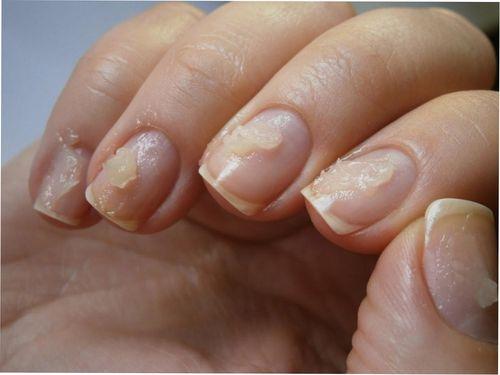 После гель-лака болят ногти