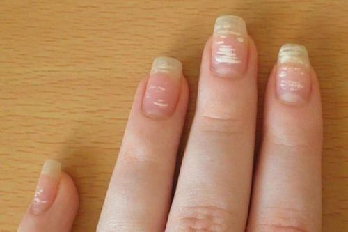 Ногти с белыми пятнами