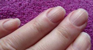 Причины появления продольных полос на ногтях рук