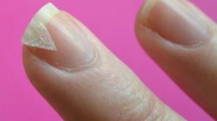 Трескаются ногтевые пластины